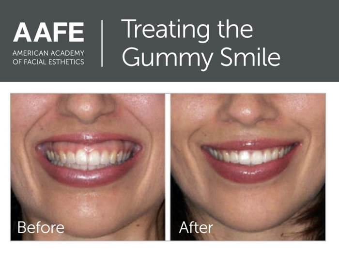 Botox & Dermal Fillers | Laramie Dental Arts